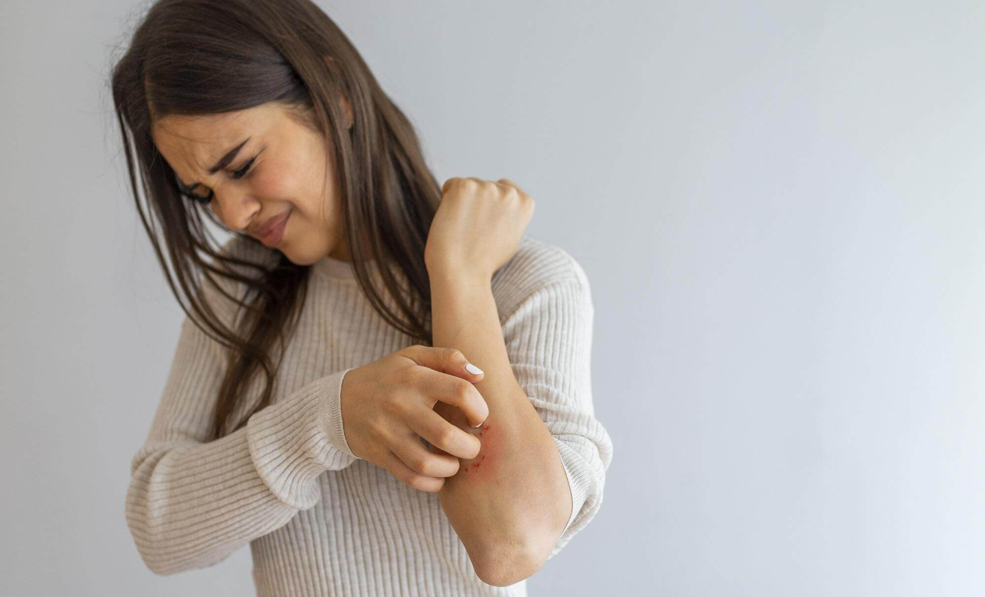 A woman scratching her painful psoriasis sores.